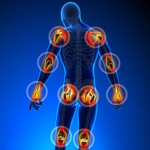 Improve symptoms of rheumatoid arthritis with cryotherapy